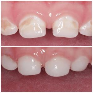 до и после лечения молочных зубов