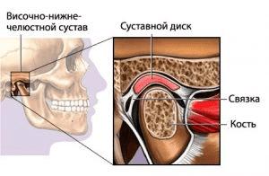 Лечение ВНЧС Киев