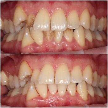 До и после профессиональной гигиены